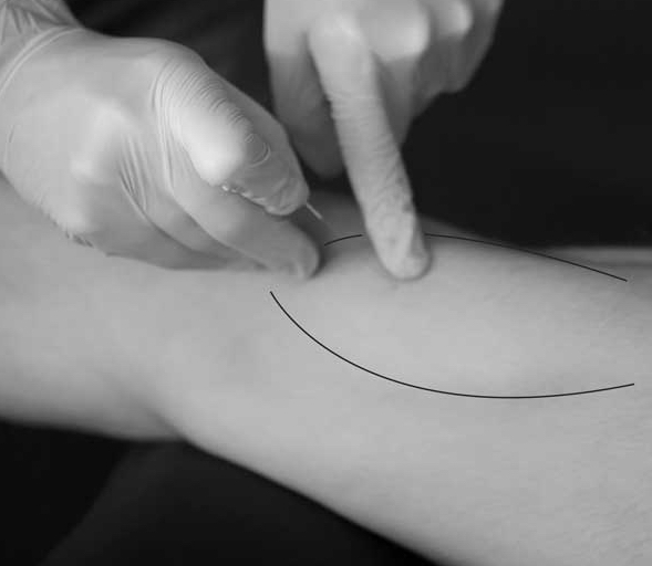 Wat is dry needling?