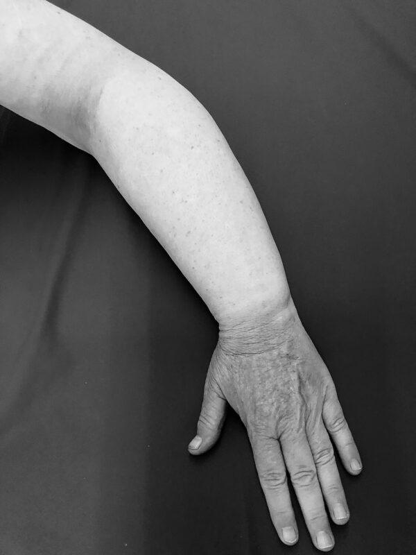 Lymfoedeem in de arm bij borstkanker